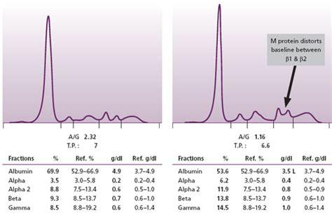 protein electrophoresis urine protein electrophoresis patterns 171 free patterns