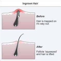 1000 images about scrub on pinterest ingrown hairs 1000 images about ingrown hair on pinterest ingrown