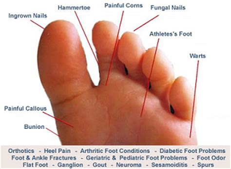 Common Foot Problems by Almawi Ltd The Holistic Clinic Our Foot Health