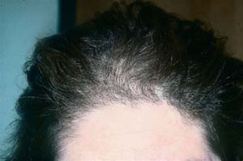 christmas tree pattern baldness hair and scalp disorders resulting in hair loss plastic
