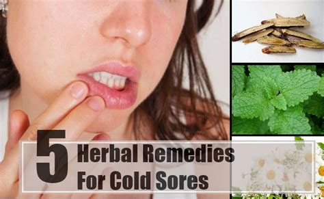 best herbal remedies for cold sores how to treat cold