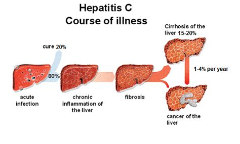 hepatitis c links best on the web hepatitis c new drug hepatitis c clinic brisbane top health doctors