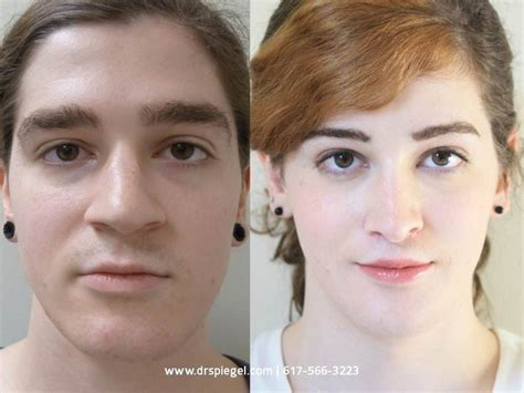 female to male transgender surgery before and after male to female transgender before and after facial