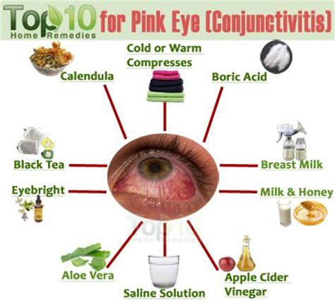 home remedies for pink eye conjunctivitis
