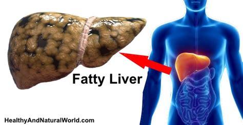fatty liver signs symptoms    prevent