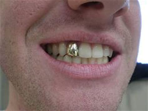 comfort dental gold plan pricing dental crowns dental implants from 163 495 dent1st