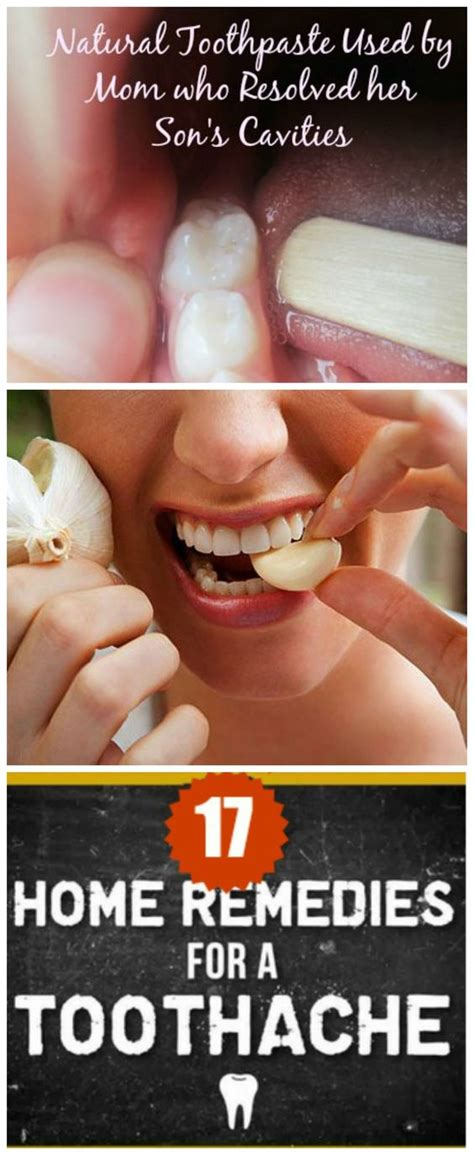 17 home remedies for a toothache toothache