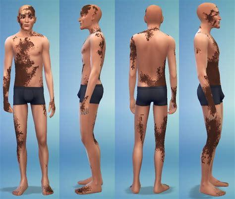sims 3 jointed doll skin vitiligo at jongarakun s junk via sims 4 updates