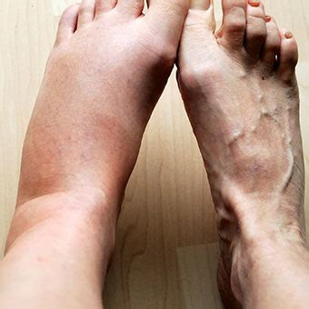 what to do for swollen feet after c section swollen ankles feet causes pregnancy disease remedies