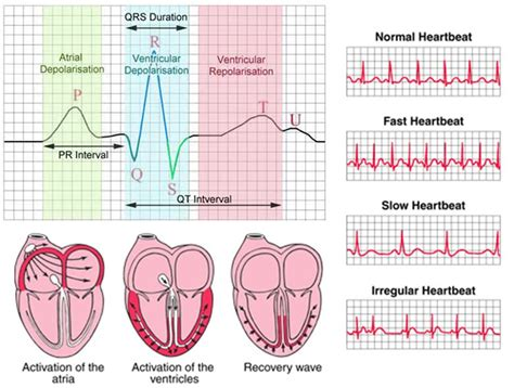 ecg pattern meaning source blogspot