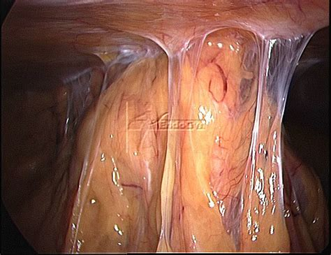 c section adhesion patient vii 187 adhesions