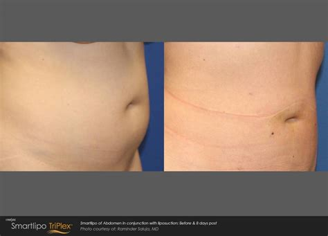 smartlipo laser liposuction body sculpting cascade
