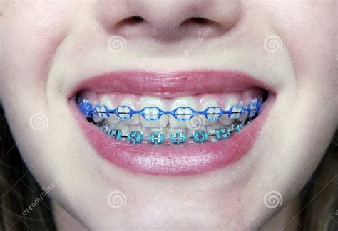clear braces with color pictures of braces before and after teeth braces ideas