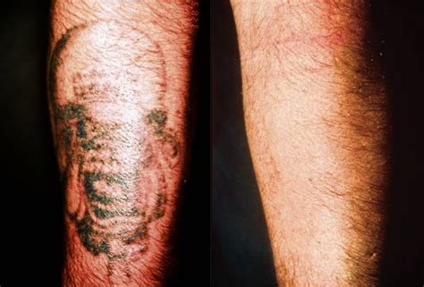 the 15 best images about tattoo removal before and after