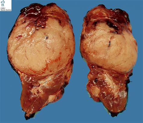 tumor pictures wilms tumor humpath human pathology