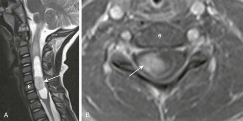 spinal tumor  tumorlike conditions radiology key