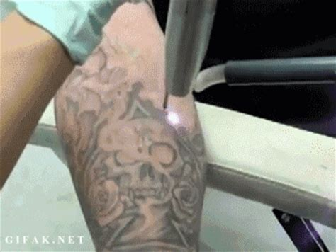 laser tattoo removal gifs