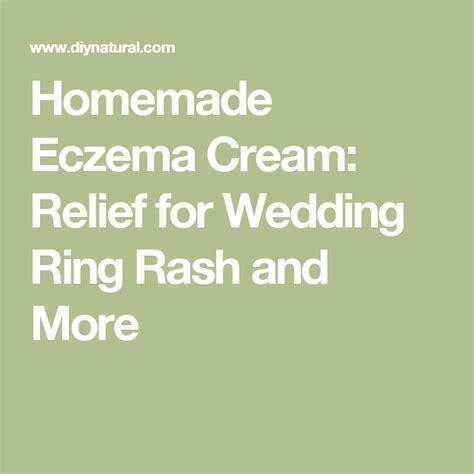 homemade eczema cream relief for wedding ring rash and