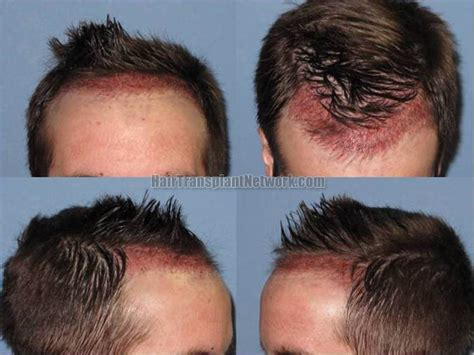 what does 2000 hair gradt look like hair transplant surgery before and after photos from 1819