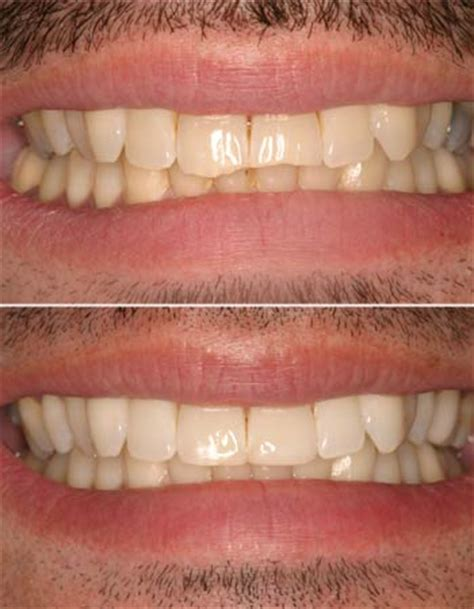 dental bonding at home 28 images teeth bonding what