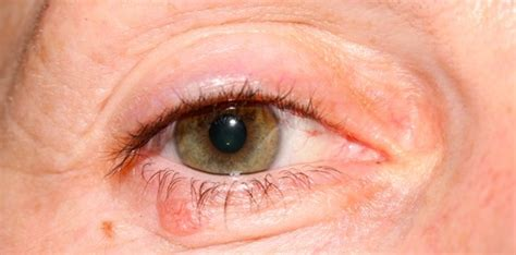 eyelid tumor related keywords suggestions for eyelid cancers