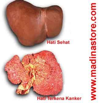 Penyembuhan Kanker Hati Herbal Alami Herbal Essence herbal kanker cancerfit terapi kanker hati alami