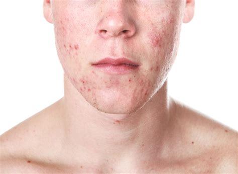alimentazione acne alimentazione e cioccolato e acne nutri e previeni