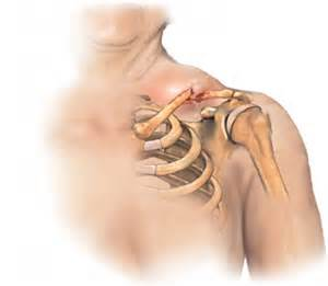 What are the most common upper extremity fractures