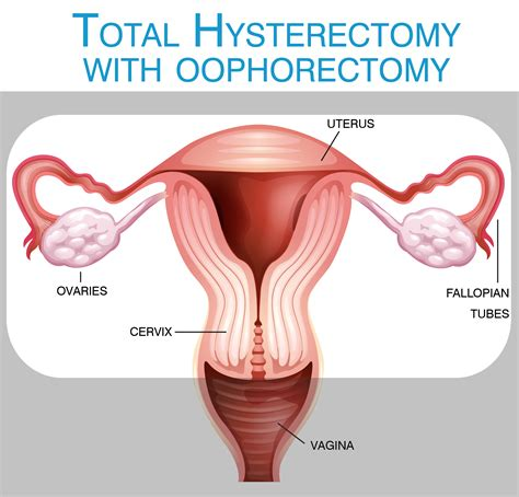diagram of hysterectomy what is a hysterectomy