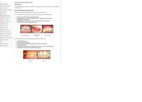 Pemutihan Gigi Di Klinik Kerajaan tips kesihatan gigi bertukar warna penstainan