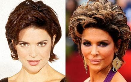 lisa rinna looks terrible lisa rinna before and after plastic surgery