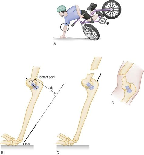 Children Of The Mechanism humerus and anesthesia key