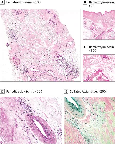 Sodium Thiosulfate Detox Calcium by Sodium Thiosulfate For Lupus Panniculitis With Cutaneous