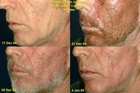 light treatment for cancer skin cancer blue light treatment for skin cancer