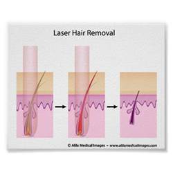 laser hair removal south jersey hairstyle gallery 28 laser hair removal surgery medical spa treatments