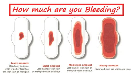 continuous menstrual bleeding with blood clots overdose