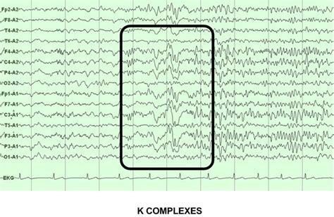 sleeping pattern synonym neurology investigations elements of normal sleep