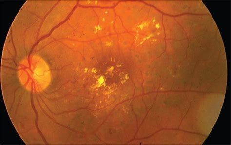 diode laser retinal photocoagulation diode laser retinal photocoagulation 28 images central retinal vein occlusion protection of