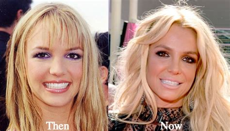 Britneys To Toe Plastic Surgery by Plastic Surgery Before And After Photos