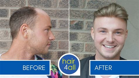 hair replacement systems for men before and after results of our non surgical hair