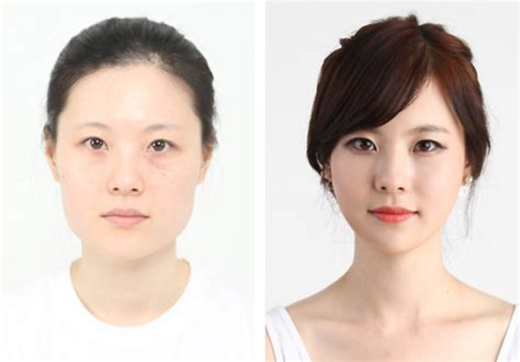 8 Reasons To Avoid Cosmetic Surgery by Best Korean Eye Surgery To Avoid Bad Plastic