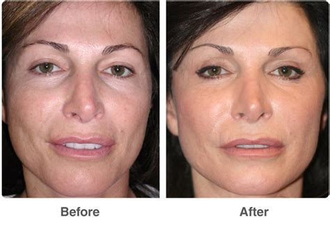 laser wrinkle removal before and after dot laser skin therapy laser skin treatments in las vegas