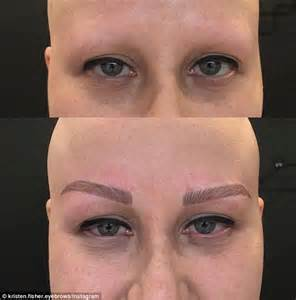 eyebrow tattoo indonesia sydney women suffering from alopecia regains eyebrows ar