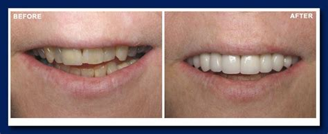 smile makeovers vancouver dentist