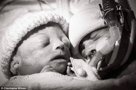 twins born at 25 weeks mother captures photo of premature twins moments after one