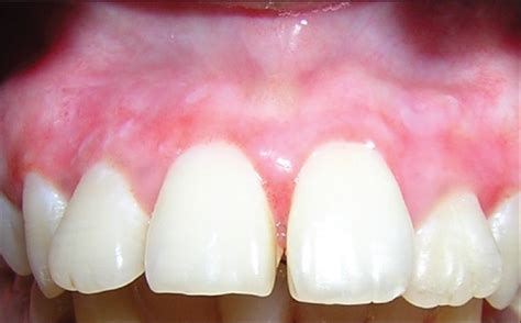 surgical esthetic correction for gingival pigmentation surgical esthetic correction for gingival pigmentation