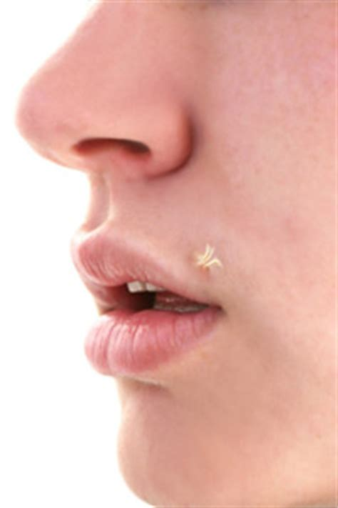 wart on lip pictures of filiform wart on every part of your