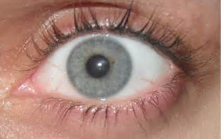 gray eye color clevergirlhelps