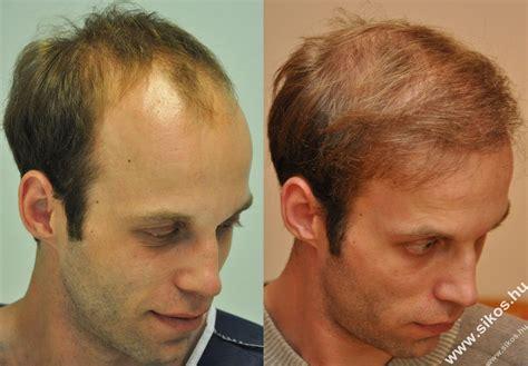 is hair transplant safe follicular hair transplant the best hair of 2017