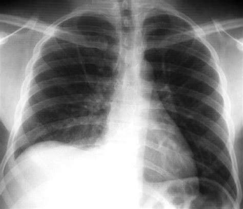 film x ray quiz chest x ray quiz